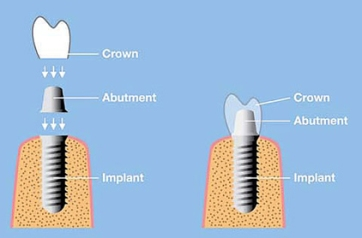 implant-abutment-and-crown